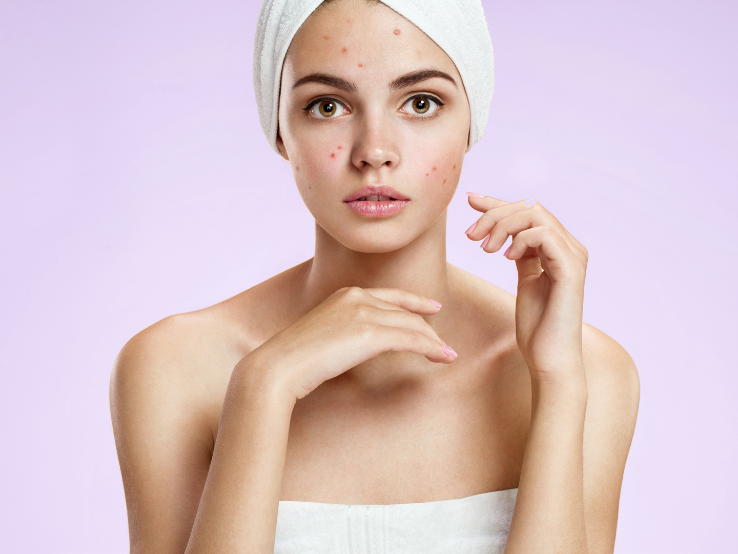 How to Reduce Pimple Redness