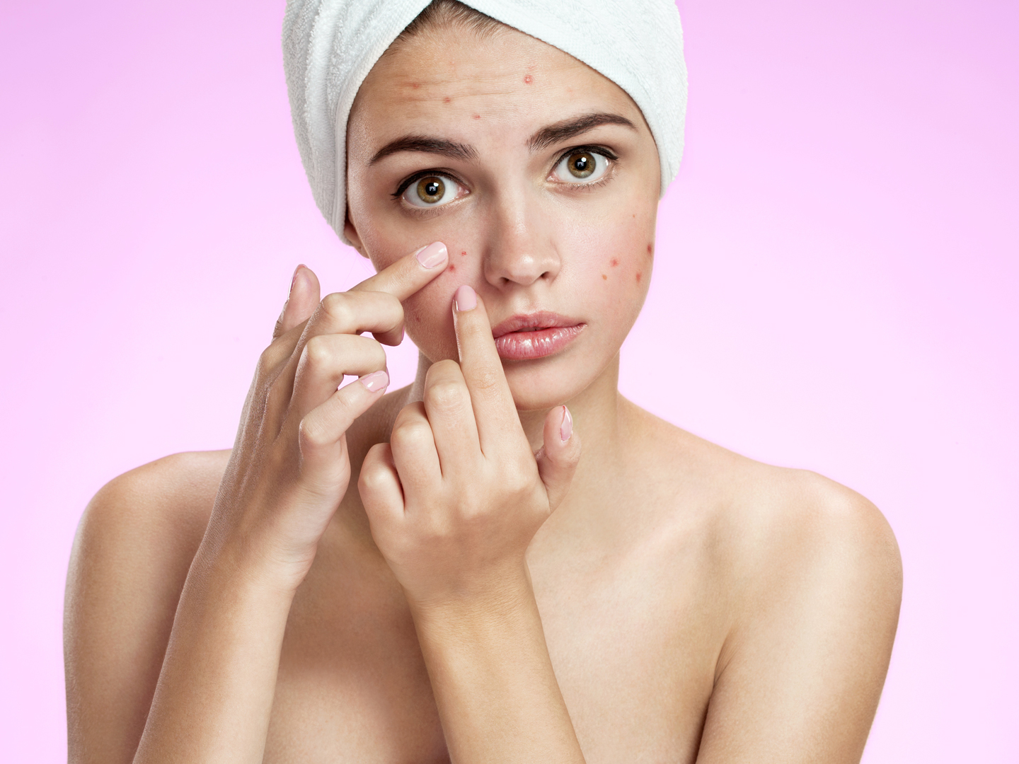 How to Use Lavender Oil for Acne